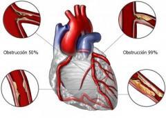 Bypass de la arteria coronaria