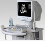 Digital Ultrasonic Imaging System